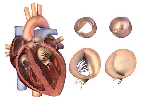 Лечение врожденных пороков сердца в Германии